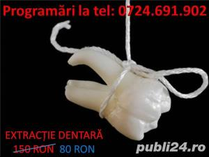 Extractie dentara - imagine 1