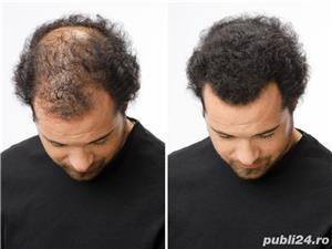 Fibre naturale pentru par rar Instant Hair  - imagine 6