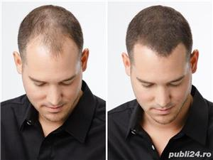Fibre naturale pentru par rar Instant Hair  - imagine 5