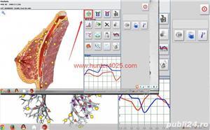Oferta Iulie 1+1GRATIS Testare prin  Biorezonanta - imagine 5